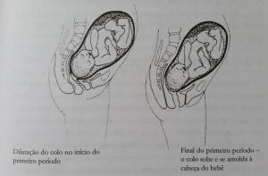 fases parto dilatação